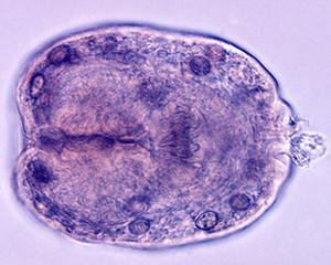 petopedija-ehinokokus-2