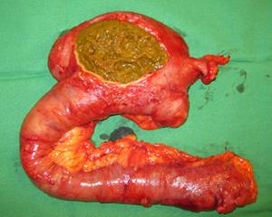rp_petopedija-fitobezoari-1.jpg