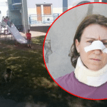 MLADENOVAC: Mirjanu (42) pretukao komšija, jer je hranila kucu ispred zgrade!