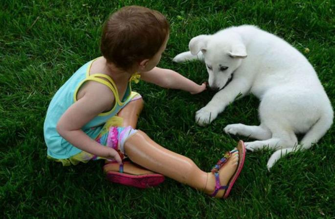 ISTA IM JE TUGA: Devojčica sa amputiranim nogama PRONAŠLA UTEHU u ovom psu (FOTO)